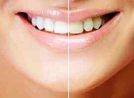 Blanqueamiento Dental - HC Odontologos - Clinica Dental Merida