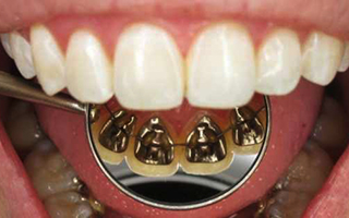 Brackets Linguales - HC Odontologos - Clinica Dental Merida