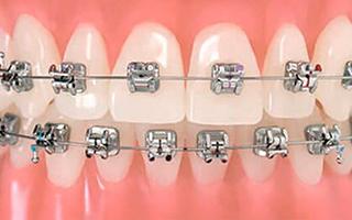 Brackets de Autoligado - HC Odontologos - Clinica Dental Merida