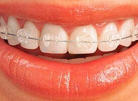 Brackets de Zafiro - HC Odontologos - clinica dental merida