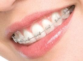 Brackets de porcelana - HC Odontologos
