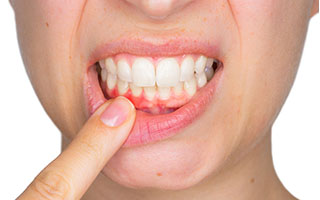 Enfermedad Periodontal - HC Odontologos- Clinica Dental Merida
