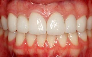 Estetica Periodontal - HC Odontologos - Clinica Dental Merida