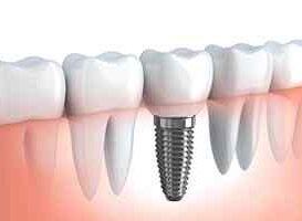Implantes Dentales - HC Odontologos - Clinica Dental en Merida