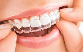 Invisalign - HC Odontologos - clinica dental en merida
