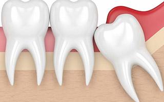 Muelas del Juicio - Extracción - HC Odontologos