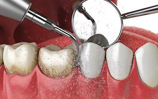 Profilaxis Dental - HC Odontologos - clinica dental merida