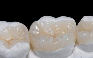 incrustaciones dentales - hc odontologos