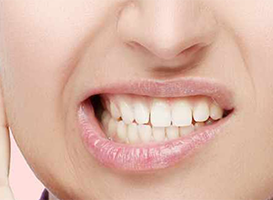 trastornos temporomandibulares - hc odontologos - clinica dental merida