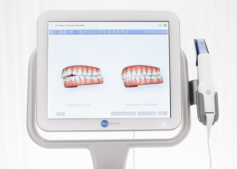 Invisalign-Day-en-Merida-HC-Odontologos-iTero-Ortodoncia